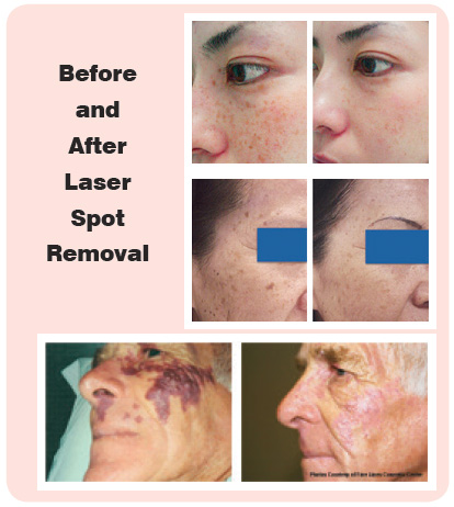 Before and After Laser Spot Removal