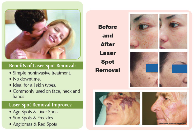 Don't hide them... Erase them with laser brown spot treatments and laser facial vein treatments - Enhanced Image Center