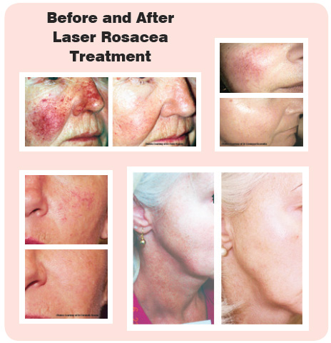 rosacea-beforeafter