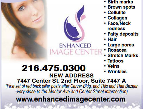 Don't hide them...Erase them with Laser Treatment!  -  Enhanced Image Center